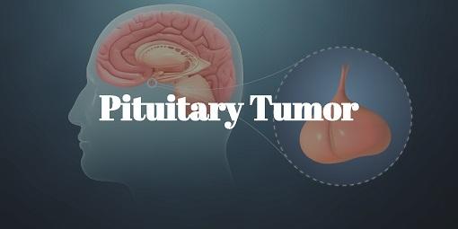 Pituitary tumor (3)