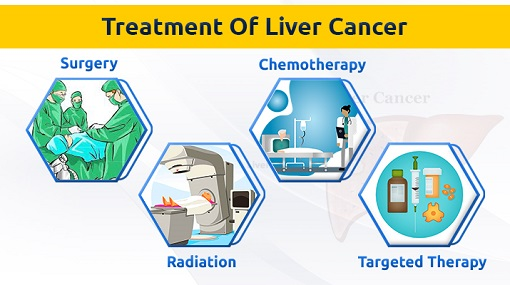 Treatments for liver cancer (1)