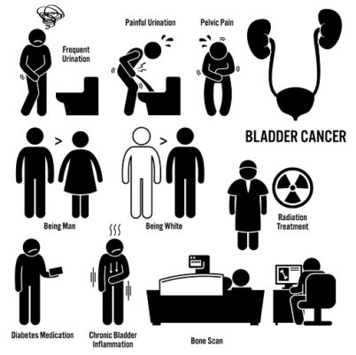 What is bladder cancer (4)