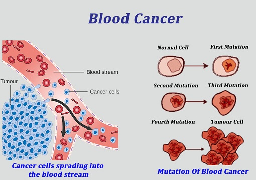 What is blood cancer (2)