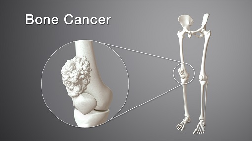 What is bone cancer (3)