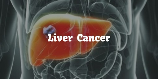 What is liver cancer (1)