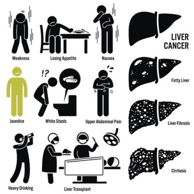 What is liver cancer (2)