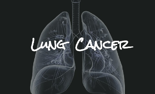 What is lung cancer (1)