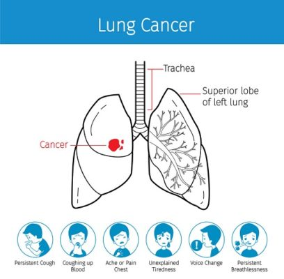 What is lung cancer (3)