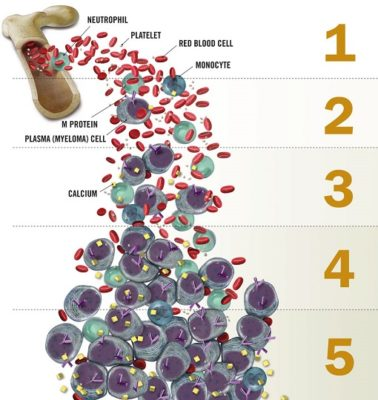 What is myeloma (2)