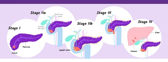 What is pancreatic cancer (2)