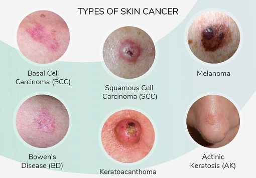 What is skin cancer (2)