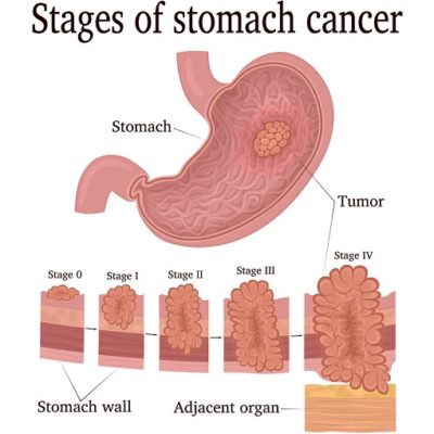 What is stomach cancer (3)