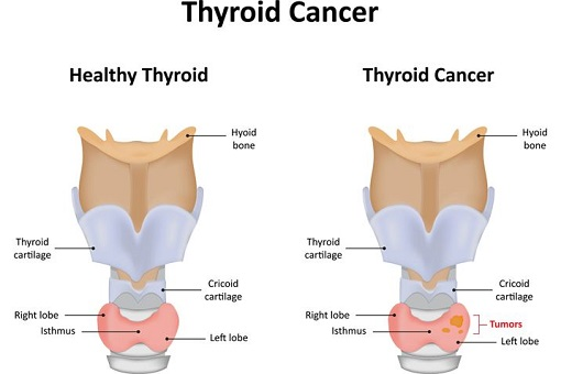 What is thyroid cancer (1)